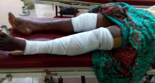 This photo shows one of the injured victims of the auto-crash which occurred along the Benin-Auchi R